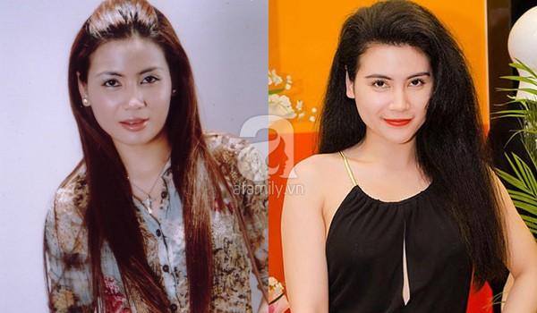 """""""Nghi án"""" diễn viên Quỳnh Hoa cũng theo trào lưu độn cằm 7"""
