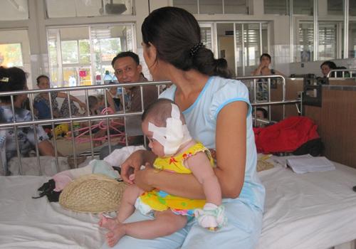 50 con dòi 'ăn' đứt tai bé gái 5 tháng tuổi