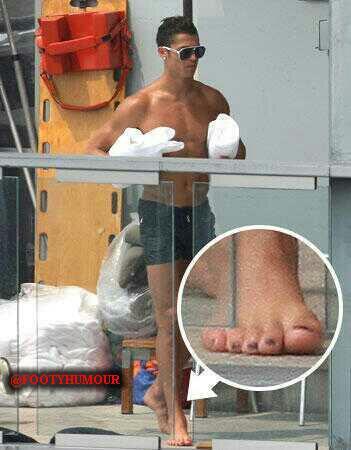 Lại là ảnh đánh móng chân