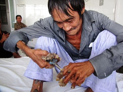 Người đàn ông bị san hô phủ kín tay