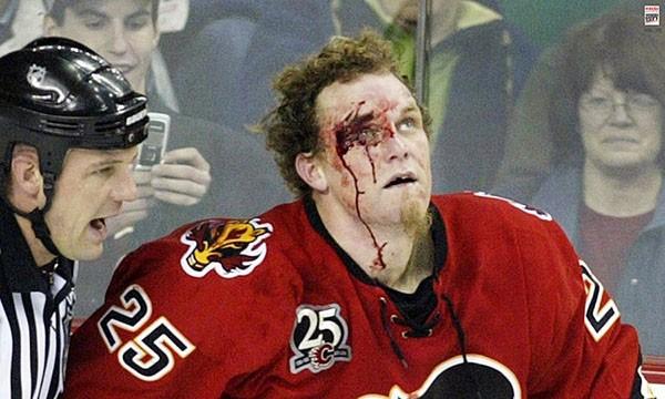 """Những """"trận chiến"""" đẫm máu trên sân băng Hockey 13"""