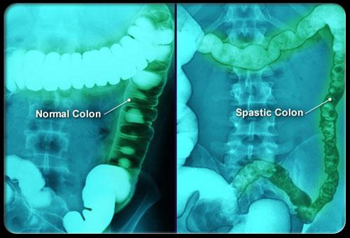 Cảnh giác khi bạn bị đau vùng xương chậu 2