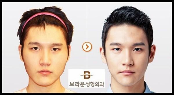 Loạt ảnh những gương mặt hoàn hảo sau phẫu thuật thẩm mỹ 12