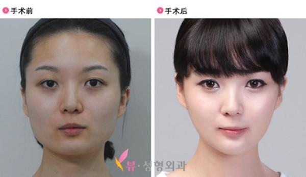 Loạt ảnh những gương mặt hoàn hảo sau phẫu thuật thẩm mỹ 13