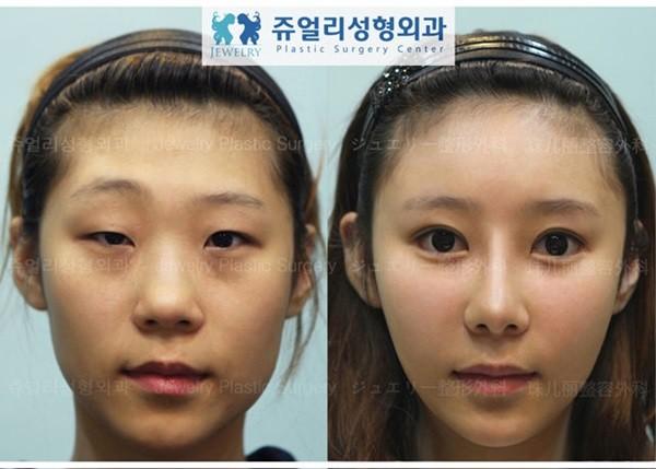 Loạt ảnh những gương mặt hoàn hảo sau phẫu thuật thẩm mỹ 14