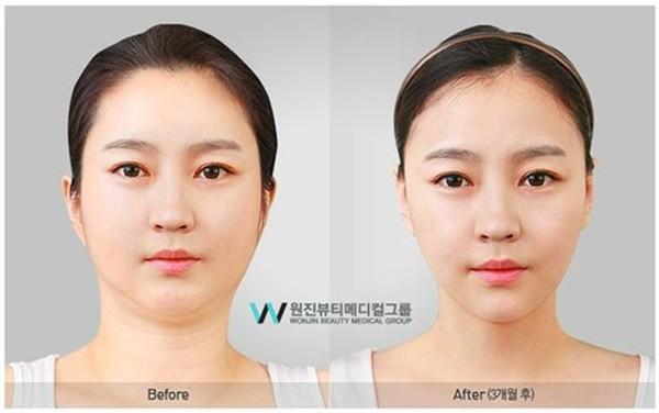 Loạt ảnh những gương mặt hoàn hảo sau phẫu thuật thẩm mỹ 15