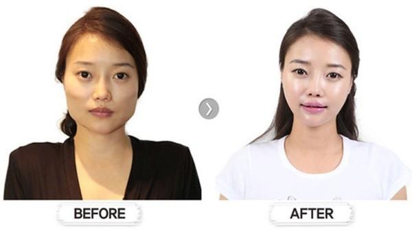 Loạt ảnh những gương mặt hoàn hảo sau phẫu thuật thẩm mỹ 16