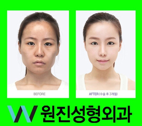 Loạt ảnh những gương mặt hoàn hảo sau phẫu thuật thẩm mỹ 17