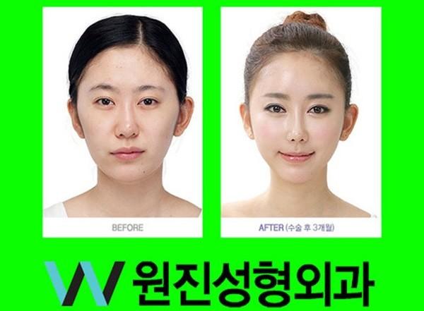 Loạt ảnh những gương mặt hoàn hảo sau phẫu thuật thẩm mỹ 20