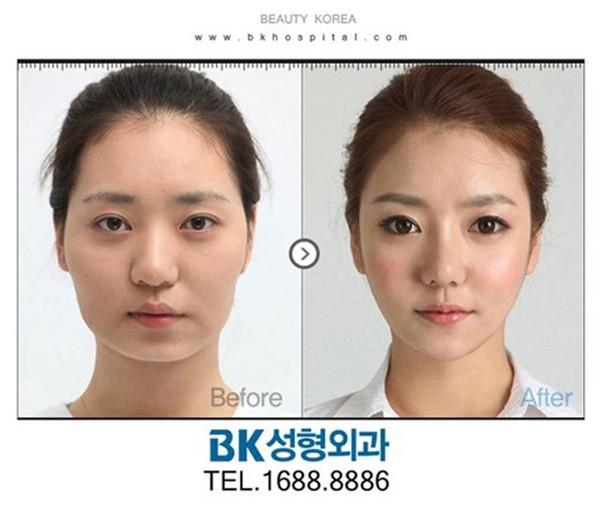 Loạt ảnh những gương mặt hoàn hảo sau phẫu thuật thẩm mỹ 22