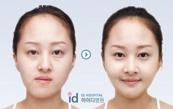 Loạt ảnh những gương mặt hoàn hảo sau phẫu thuật thẩm mỹ 24