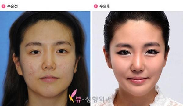 Loạt ảnh những gương mặt hoàn hảo sau phẫu thuật thẩm mỹ 26