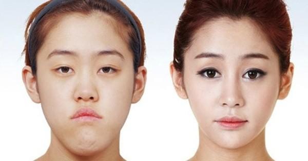 Loạt ảnh những gương mặt hoàn hảo sau phẫu thuật thẩm mỹ 27