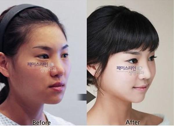 Loạt ảnh những gương mặt hoàn hảo sau phẫu thuật thẩm mỹ 1