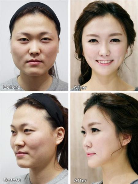 Loạt ảnh những gương mặt hoàn hảo sau phẫu thuật thẩm mỹ 28