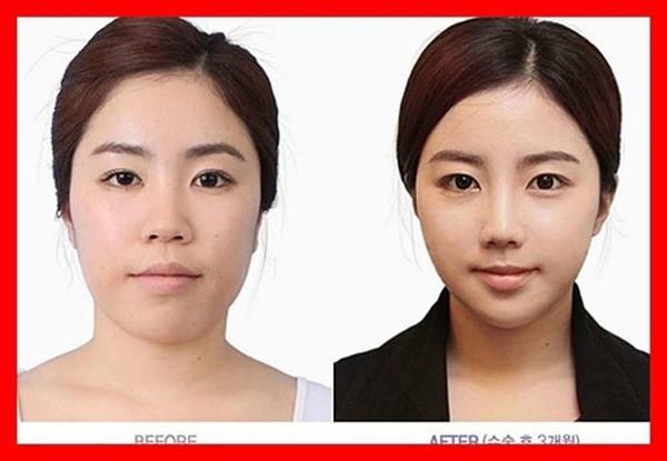 Loạt ảnh những gương mặt hoàn hảo sau phẫu thuật thẩm mỹ 29