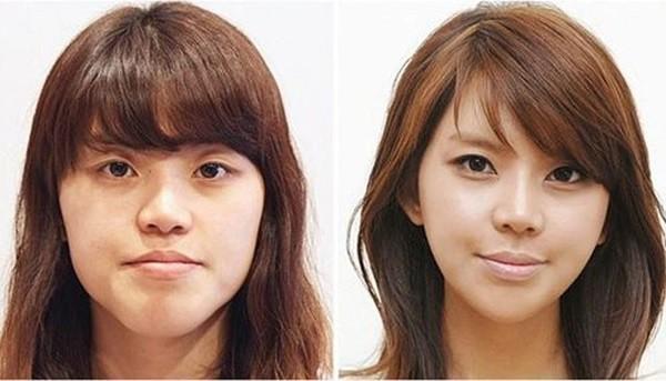 Loạt ảnh những gương mặt hoàn hảo sau phẫu thuật thẩm mỹ 30