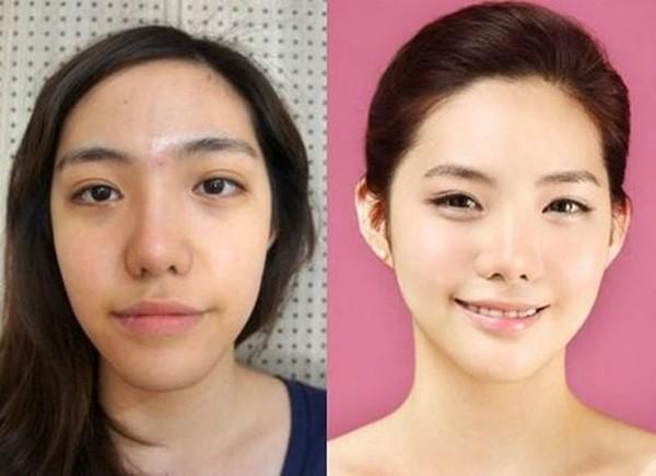 Loạt ảnh những gương mặt hoàn hảo sau phẫu thuật thẩm mỹ 31