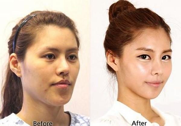 Loạt ảnh những gương mặt hoàn hảo sau phẫu thuật thẩm mỹ 32