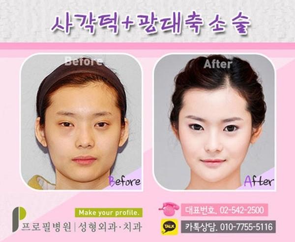 Loạt ảnh những gương mặt hoàn hảo sau phẫu thuật thẩm mỹ 33