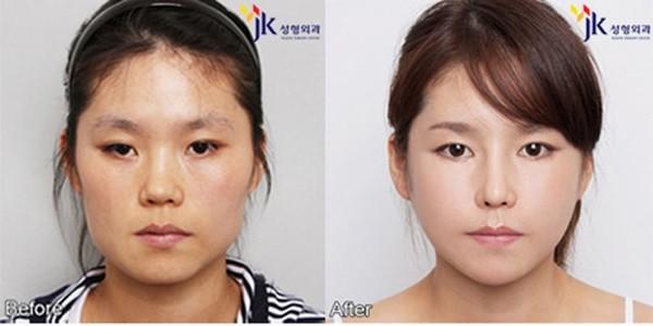 Loạt ảnh những gương mặt hoàn hảo sau phẫu thuật thẩm mỹ 34