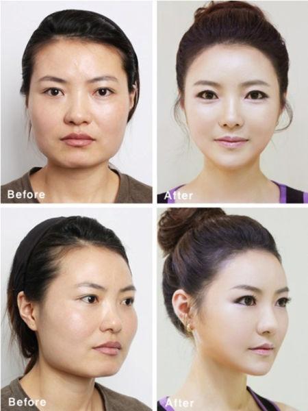 Loạt ảnh những gương mặt hoàn hảo sau phẫu thuật thẩm mỹ 35