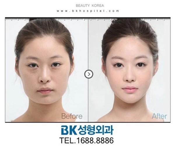 Loạt ảnh những gương mặt hoàn hảo sau phẫu thuật thẩm mỹ 36