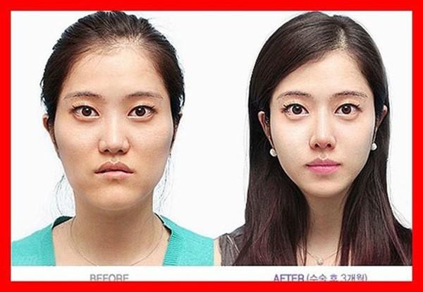 Loạt ảnh những gương mặt hoàn hảo sau phẫu thuật thẩm mỹ 2