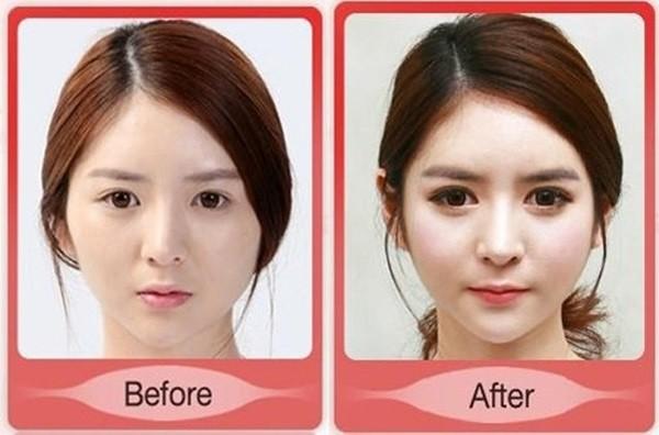 Loạt ảnh những gương mặt hoàn hảo sau phẫu thuật thẩm mỹ 38