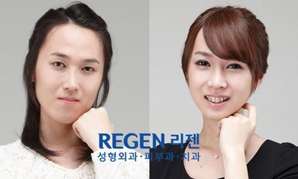 Loạt ảnh những gương mặt hoàn hảo sau phẫu thuật thẩm mỹ 39