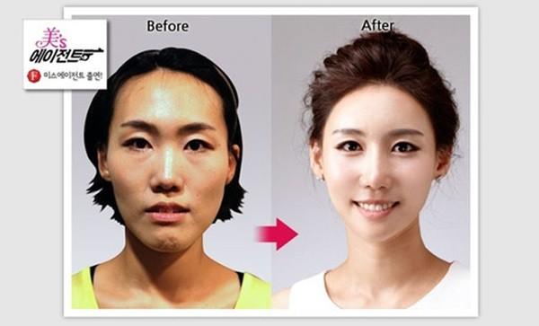Loạt ảnh những gương mặt hoàn hảo sau phẫu thuật thẩm mỹ 40