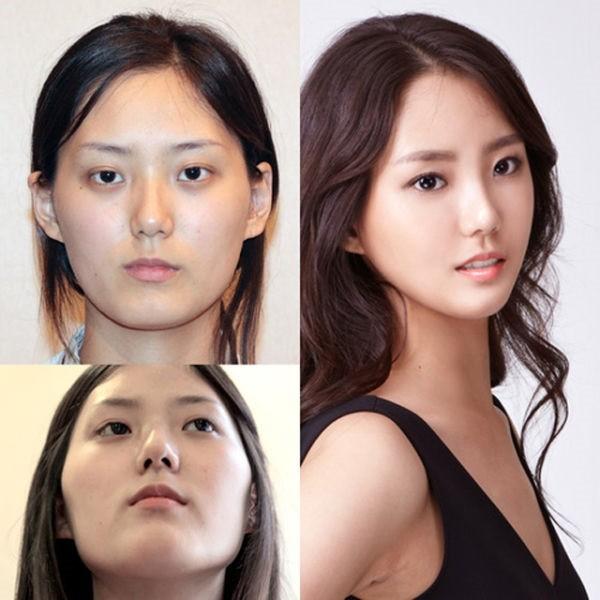 Loạt ảnh những gương mặt hoàn hảo sau phẫu thuật thẩm mỹ 41