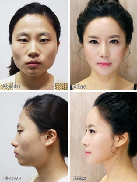 Loạt ảnh những gương mặt hoàn hảo sau phẫu thuật thẩm mỹ 42