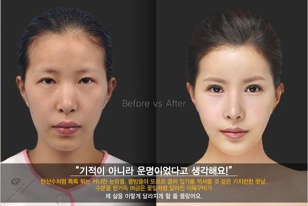 Loạt ảnh những gương mặt hoàn hảo sau phẫu thuật thẩm mỹ 3
