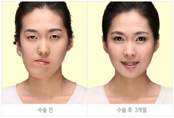 Loạt ảnh những gương mặt hoàn hảo sau phẫu thuật thẩm mỹ 4