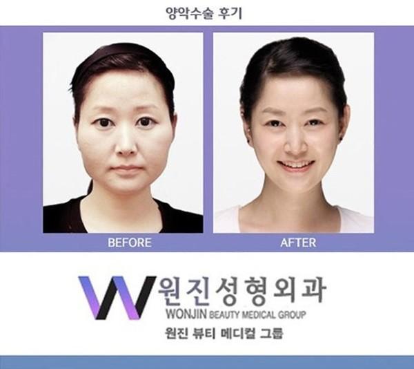 Loạt ảnh những gương mặt hoàn hảo sau phẫu thuật thẩm mỹ 5
