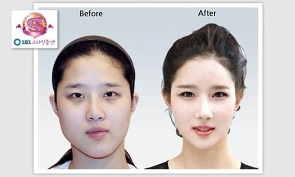 Loạt ảnh những gương mặt hoàn hảo sau phẫu thuật thẩm mỹ 6