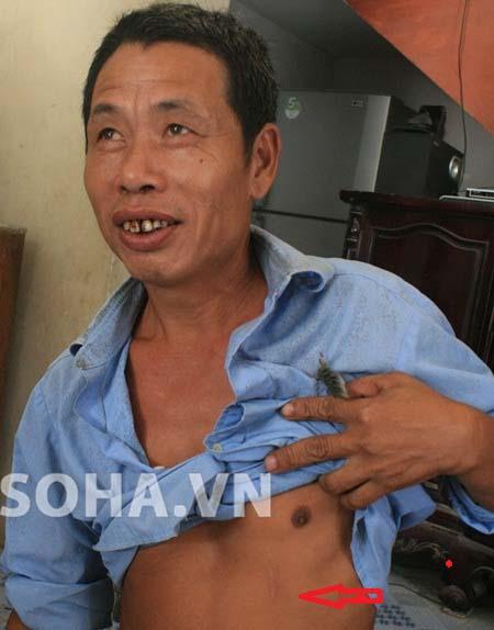 Vết sẹo để lại trên người ông Nguyễn Văn Thu (SN 1966, xã Danh Thắng) khi có mặt tại thời điểm người dân đánh hai