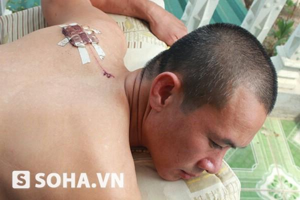 Nạn nhân Trần Phi Hiền bị chém phải khâu 12 mũi
