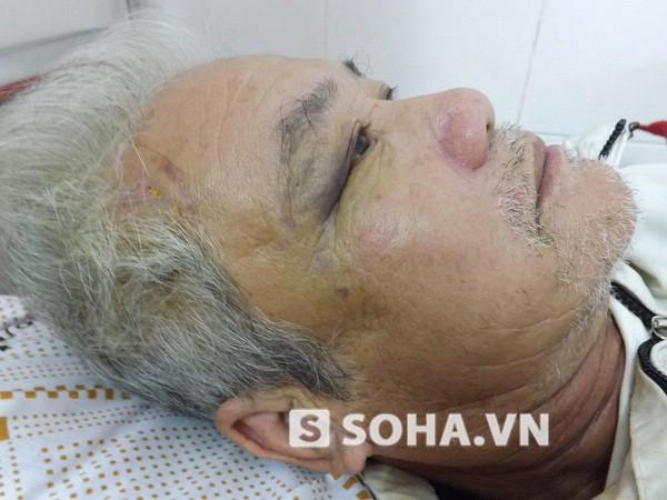 1 tuần trôi qua, các vết bầm tím trên mặt, mắt của ông Phước vẫn còn.