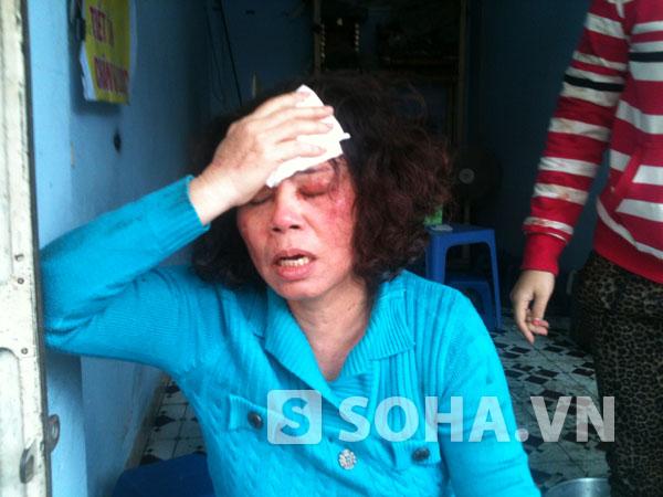 Hình ảnh bà Liên sau khi bị hành hung vào sáng 19/10.