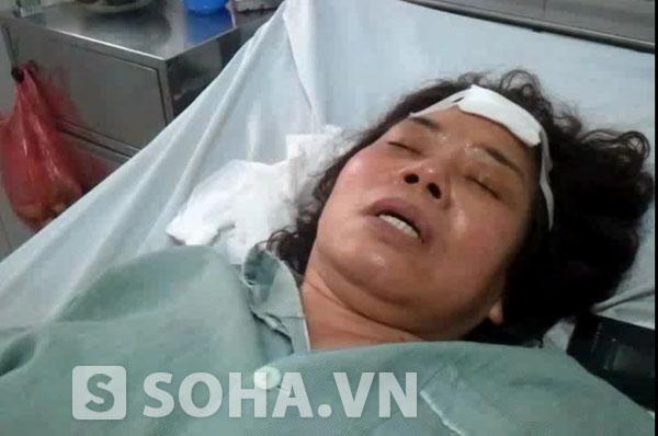 Bà Liên hiện đang nằm điều trị tại BV Bưu điện sau khi bị 4 đối tượng hành hung vào sáng 19/10.