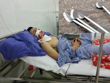 Nguyễn Tiến Thắng bị chém trọng thương ở đầu và vai đang điều trị tại bệnh viện (ảnh lớn). Hung khí các đối tượng vứt lại hiện trường (ảnh nhỏ)