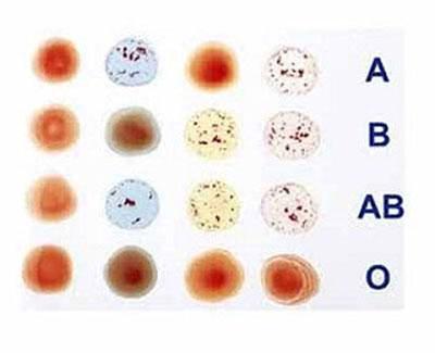 Người nhóm máu nào dễ mắc bệnh ung thư nhất?
