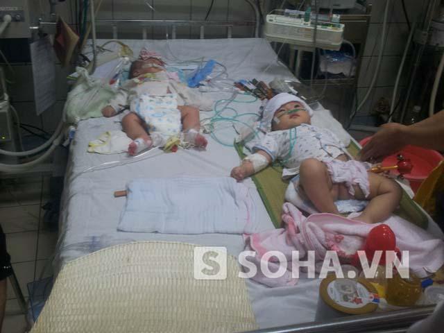 Các bệnh nhi mắc sởi đang điều trị tại Bệnh viện Bạch Mai.