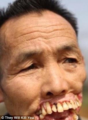 10 bệnh đáng sợ nhất thế giới: Có bệnh đã xuất hiện ở Việt Nam - Ảnh 1.