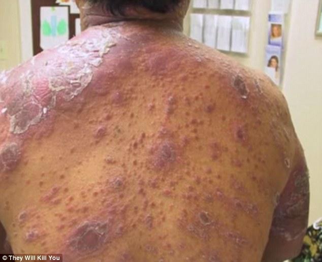 10 bệnh đáng sợ nhất thế giới: Có bệnh đã xuất hiện ở Việt Nam - Ảnh 4.