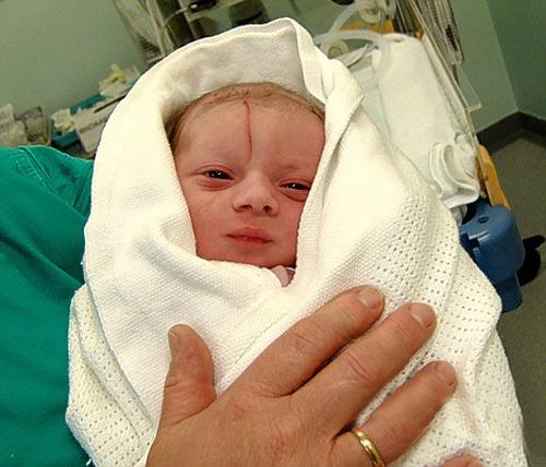 Mẹ mổ đẻ, em bé bị rạch rách mặt và lời giải thích khó nghe của bác sĩ - Ảnh 4.