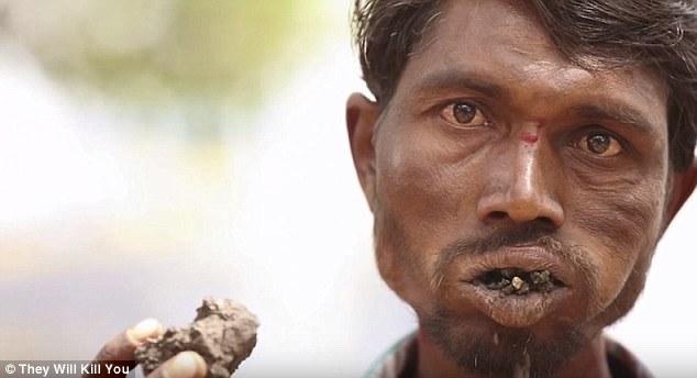 10 bệnh đáng sợ nhất thế giới: Có bệnh đã xuất hiện ở Việt Nam - Ảnh 7.