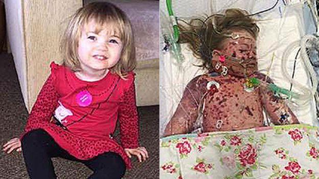 Bé 1 tuổi tử vong do viêm màng não chỉ sau 24 giờ sốt và phát ban - Ảnh 2.